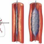 Cornary Angioplasty